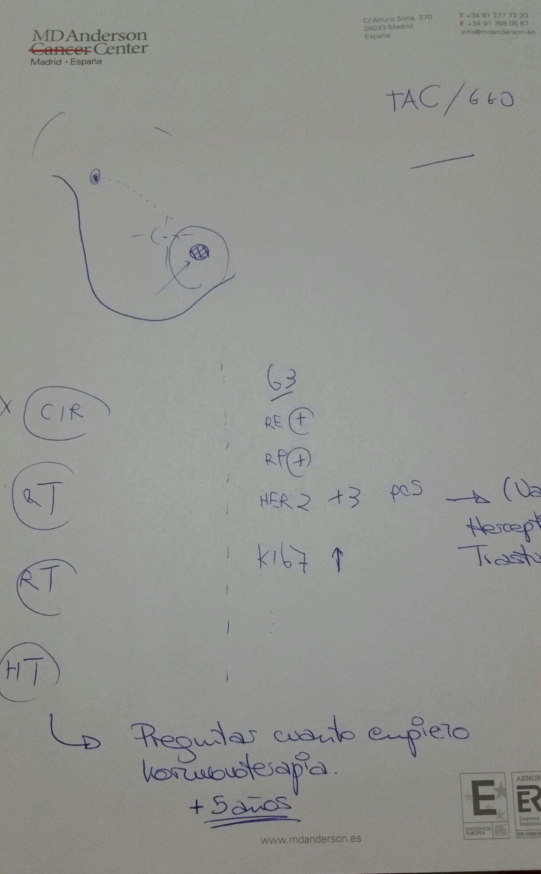 Segunda opinión cáncer de mama MD Anderson Cáncer Center 1