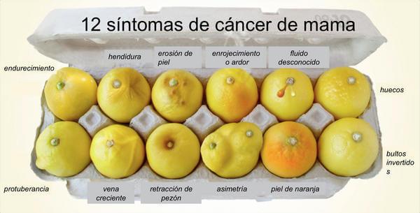 12 síntomas de cáncer de mama