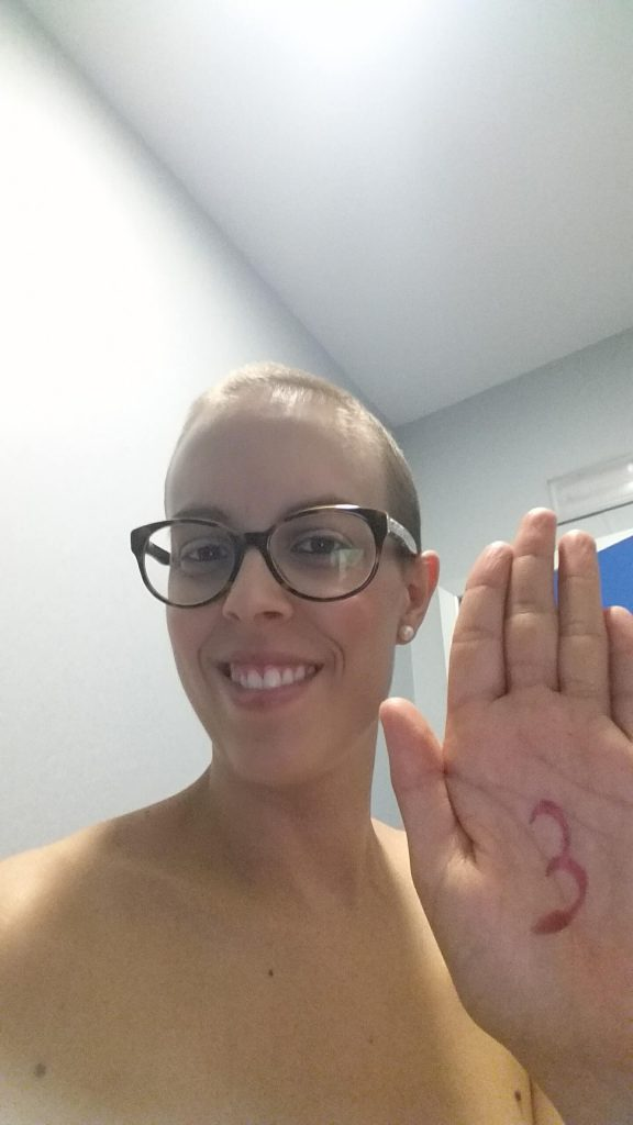 Sesion 3 de radioterapia