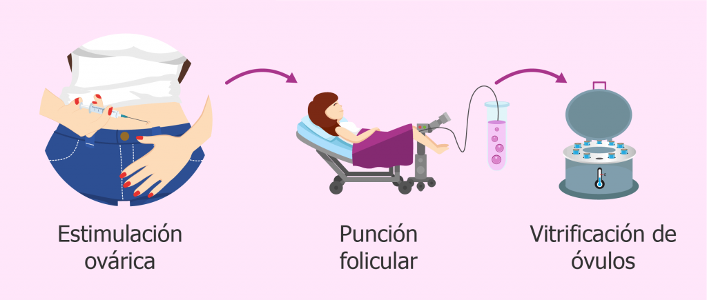 estimulación ovárica, punción folicular, vitricación de óvulos