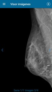 Nervios esperando a la oncóloga 2