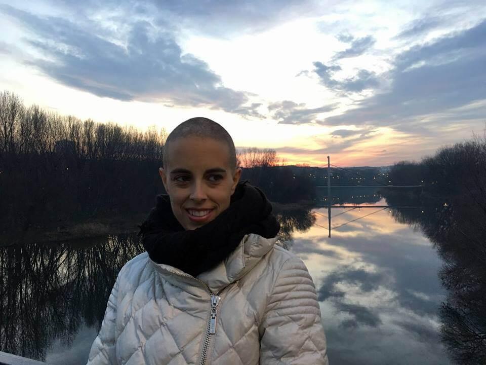 Raparse cuando se cae el pelo por quimioterapia